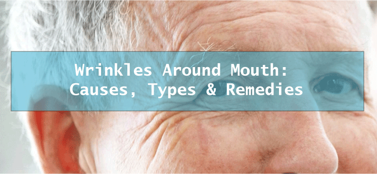 Wrinkles around mouth