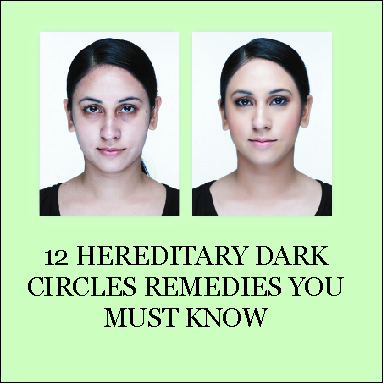 hereditary dark circles